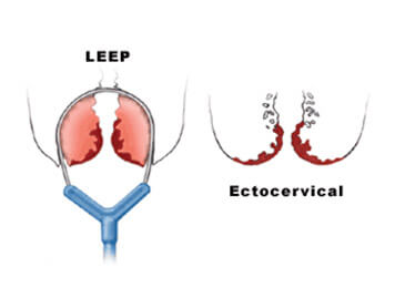 LEEP (Loop Electrosurgical Excision Procedure) and Cone Biopsy
